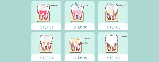 Root Canal Therapy: The Basics