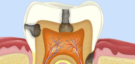 How Can I Avoid a Future Root Canal Procedure?